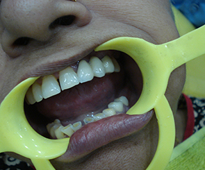 TOOTH DECAY Treatment in Noida